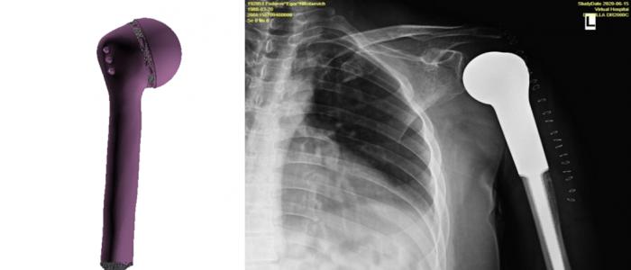Эндопротез плеча